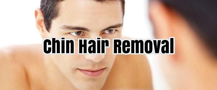 Chin Hair Removal